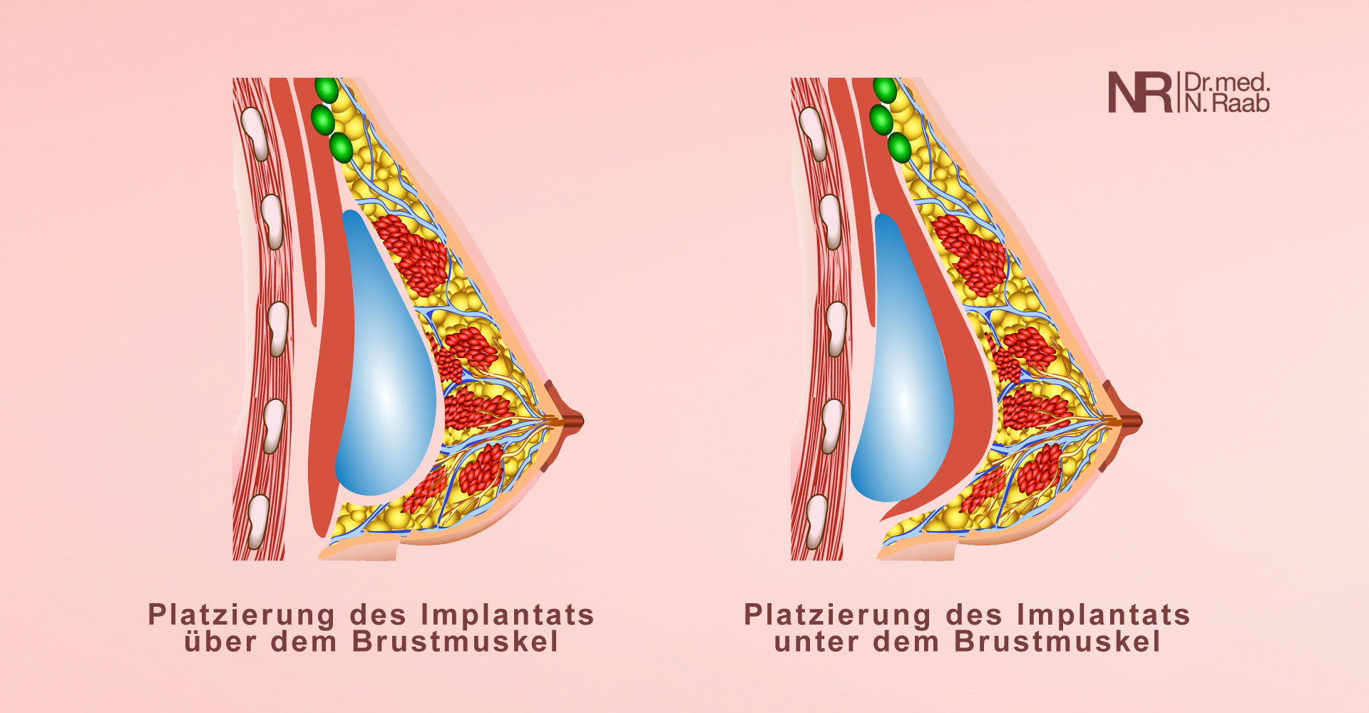 Brustvergrösserung - Implantatposition über oder unter dem Brustmuskel