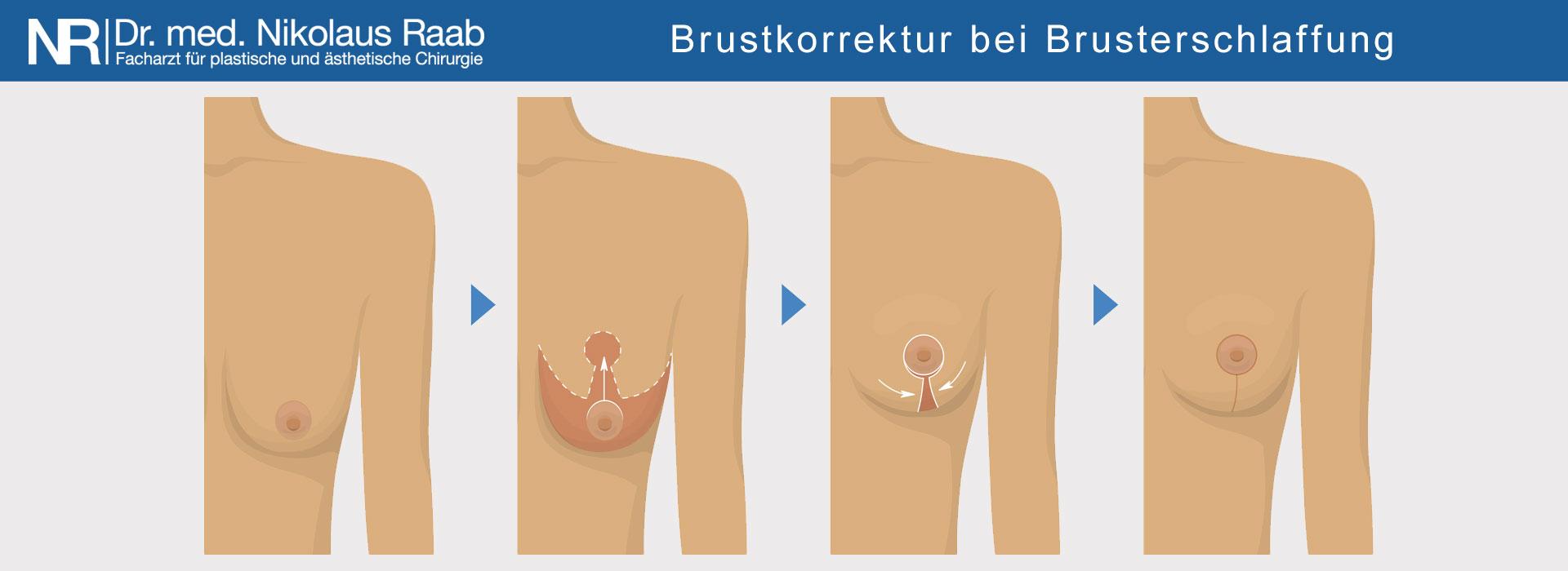 Korrektur von Hängebrüsten durch Bruststraffung